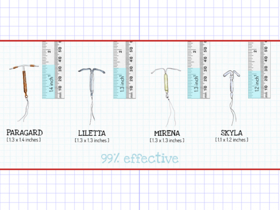 a graphic saying that the IUD is 99% effective